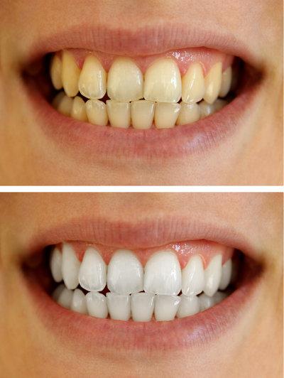 Bělení před a po
